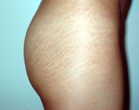 strech marks Skin Care Products for Stretch Marks