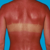 sunburn Skin Care for Sun Burn